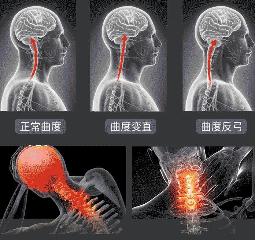 颈椎治疗仪哪种好,治颈椎要选对治疗仪-颈养