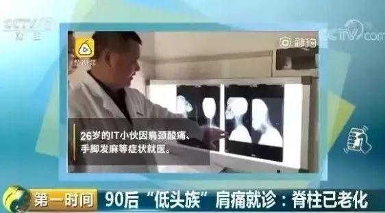 颈椎病新闻热搜.jpg