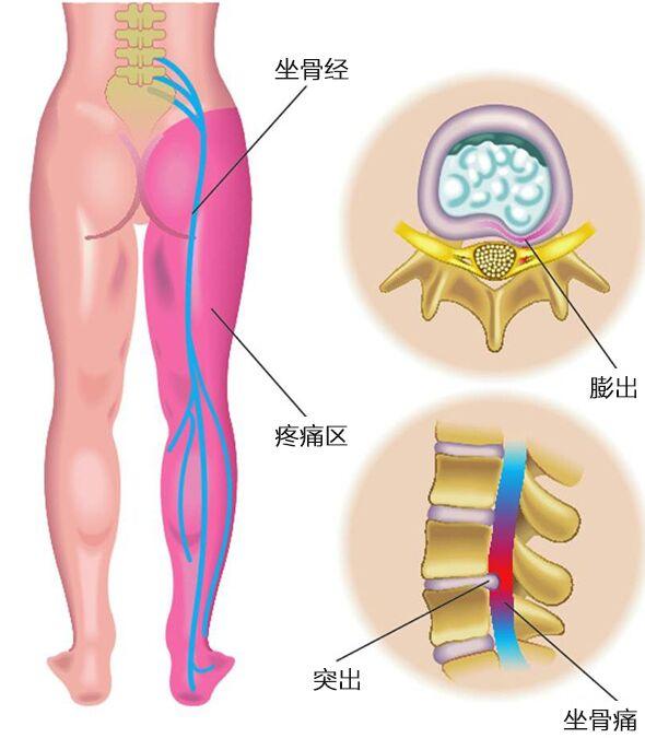 人体腰部神经图.jpg